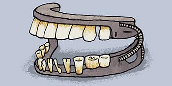 mountvernon-dentures-350x175